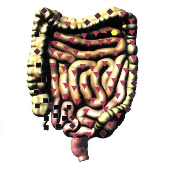 Кишечник - дисбактериоз кишечника.