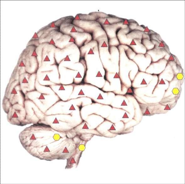 Мозг справа - нормальная работа головного мозга.