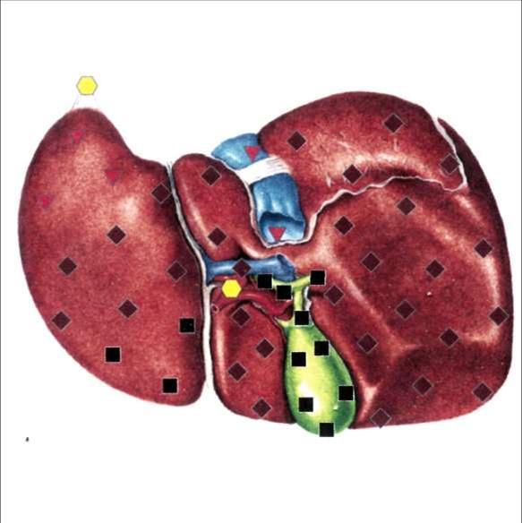 Печень - жировая дистрофия печени с признаками желчекаменной болезни.