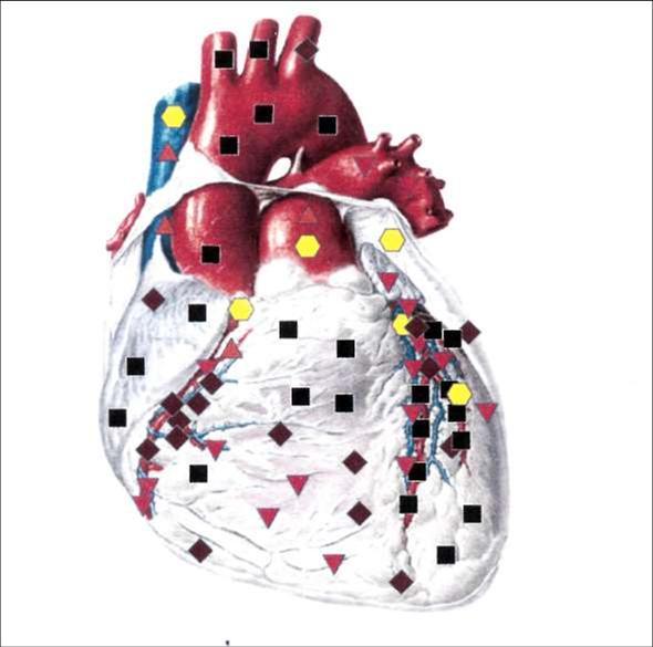 Сердце спереди - ишемические явления в сердце на фоне атеросклероза коронарных сосудов, атеросклероз аорты.